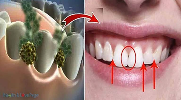 Eliminate Bad Breath In 5 Minutes! This Remedy Will Destroy All The Bacteria That Cause Bad Breath!