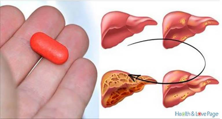 Doctors Warn This Common Drug Destroys Your Liver