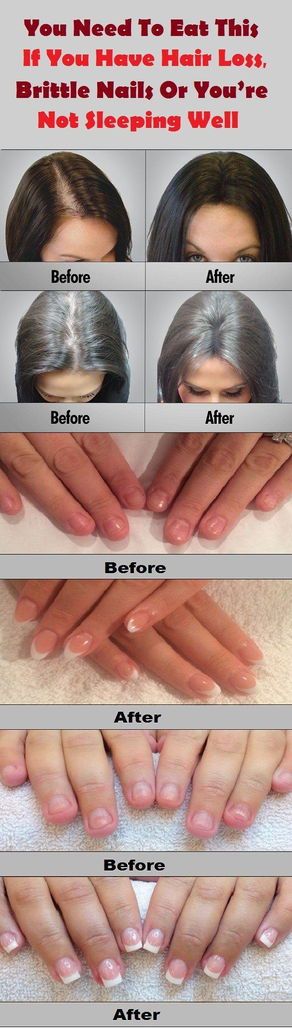 If You Have Hair Loss, Brittle Nails or You're Not Sleeping Well, Checkout This Natural Recipe