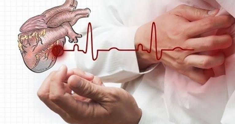 In Case of a Heart Attack You Have 10 Seconds Only to Save Your Life! Here's What You Should Do (VIDEO)