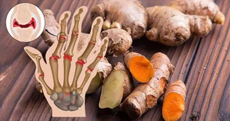 30 Science-Backed Foods That Ease Away Arthritis Pain and Inflammation