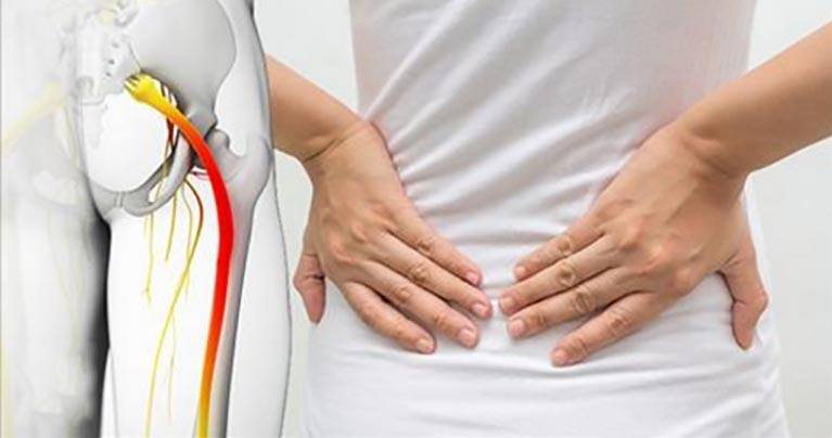 4 Easy Massage Tricks That Can Relieve Sciatica Pain in 10 Minutes