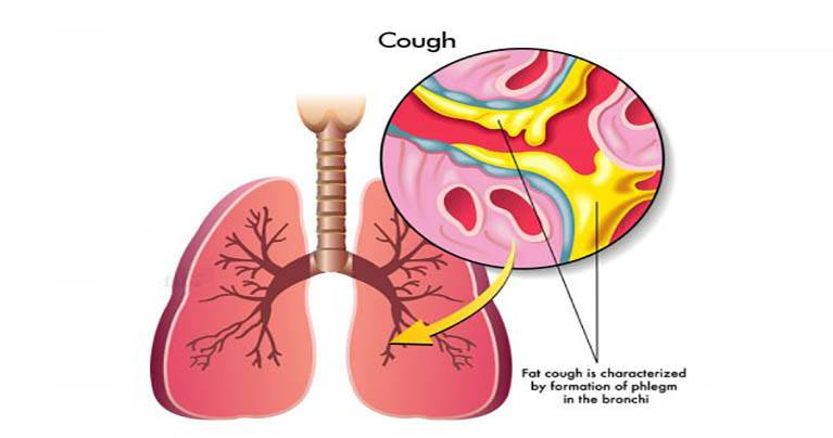 5 Methods to Stop Coughing Fast without Medicine