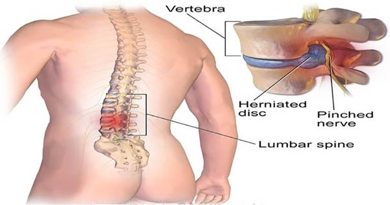 The Secret to Relieving Back Pain NOW! Do These 5 Exercises In Just 15 Minutes
