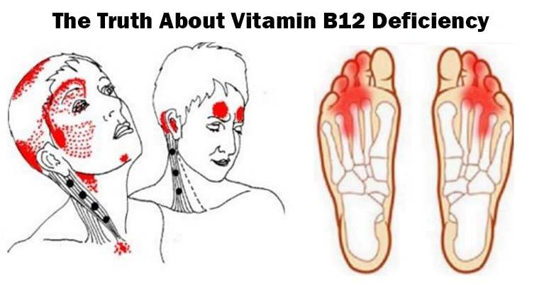 Image result for Give Me 10 Minutes, I'll Give You The Truth About Vitamin B12 Deficiency