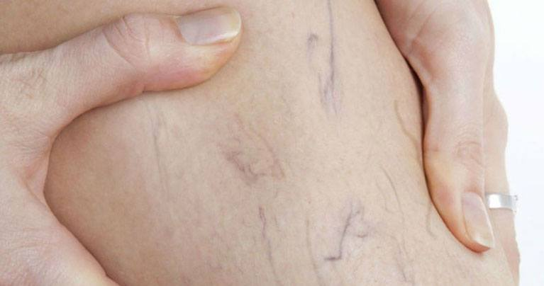 Home Treatments for Varicose Veins That Really Work
