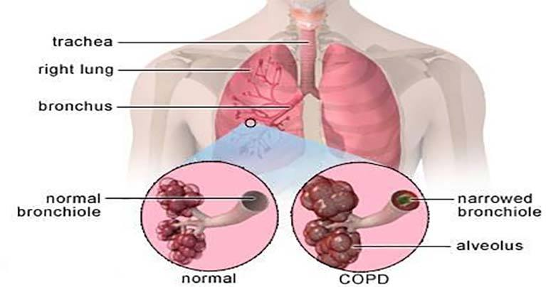 How to Reverse COPD Damage in Lungs with this Plant Compound?