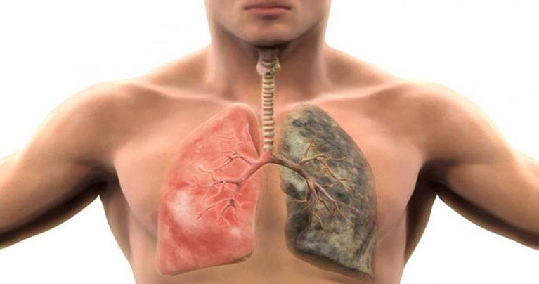 Smokers and Non-Smokers: Clean and Revitalize Your Lungs