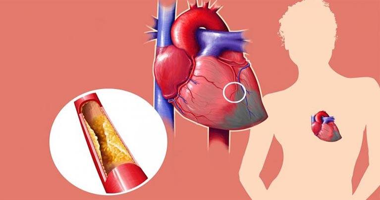 10 Surprisingly Effective Ways to Lower Your Cholesterol Level