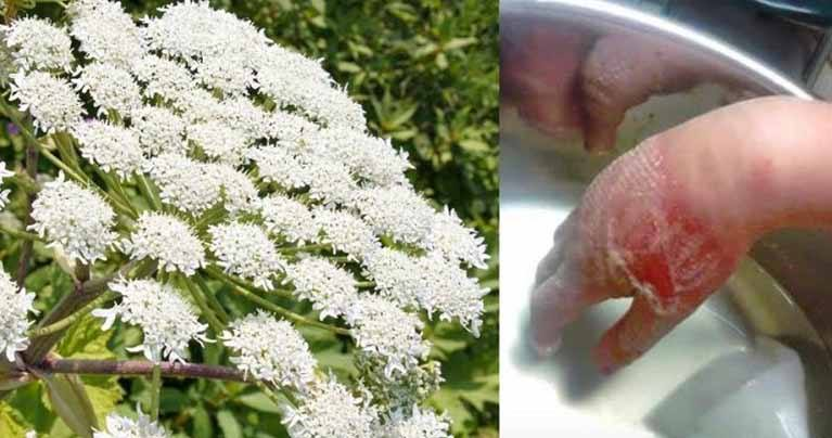 Attention: Don't Touch This Plant! It Can Burn Your Skin and Cause Blindness