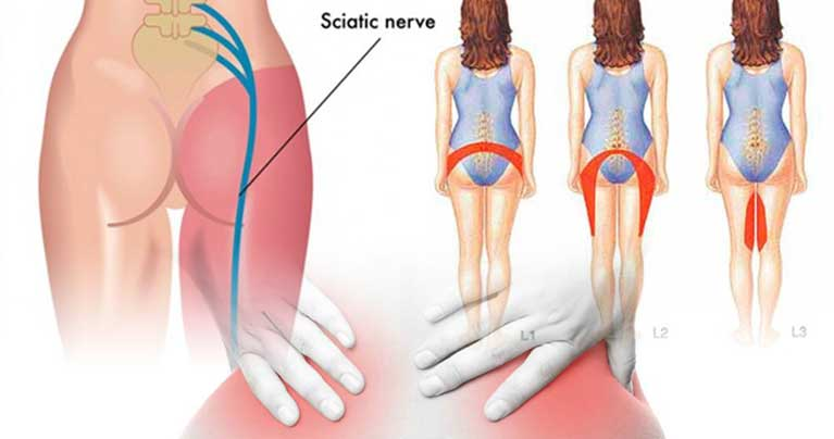 Relieve Sciatica Pain