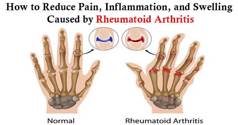Rheumatoid-Arthritis-–-The-Best-10-Home-Remedies-and-Treatments