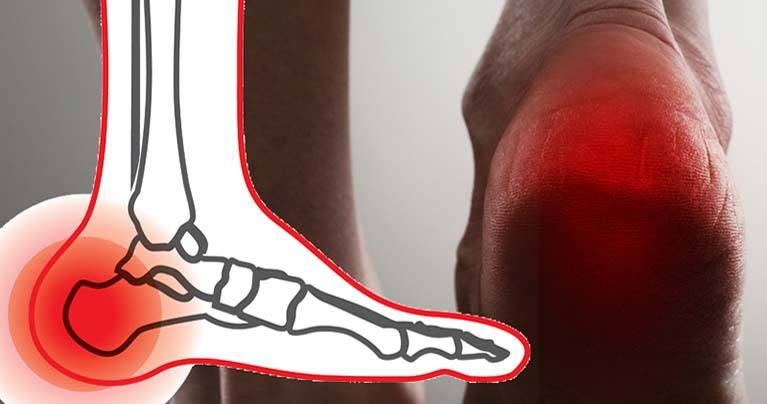 The Best Ways to Cure Your Heel Pain (Plantar Fasciitis) Naturally
