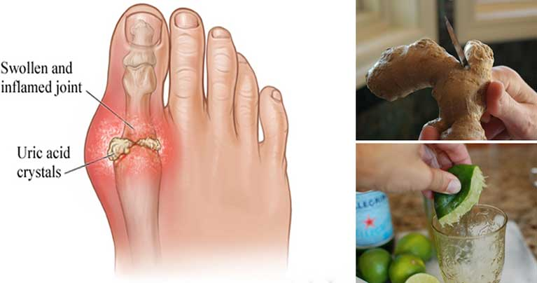 Treat-and-Prevent-Gout-Attacks-with-These-7-Home-Treatments