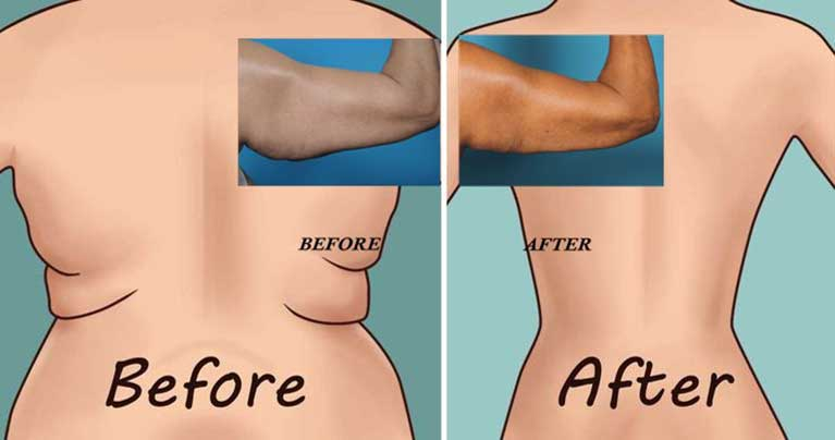 Try The 6 World's Easiest Exercises For Back Fat and Underarm Flab