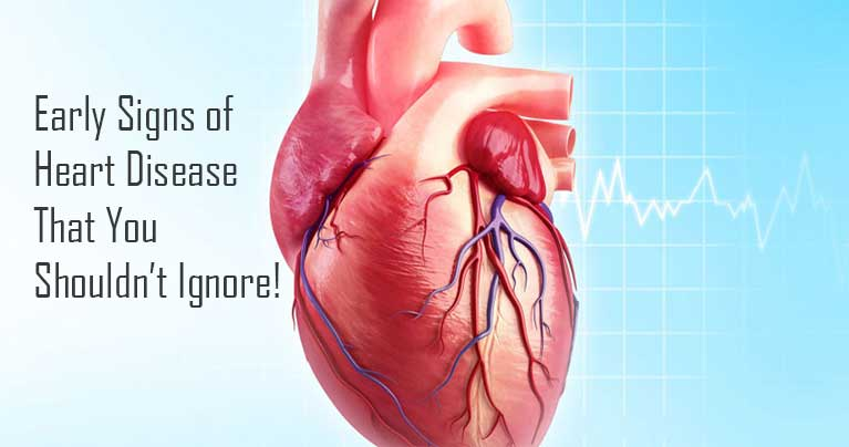 What Are The Early Signs of Heart Diseases That You Shouldn't Ignore