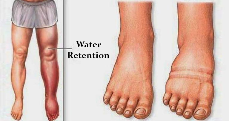 What Causes Water Retention and How to Avoid It